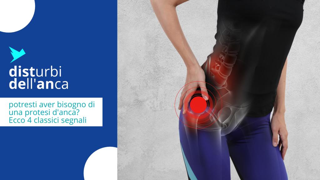 4 segnali che indicano che potresti aver bisogno di una protesi d'anca